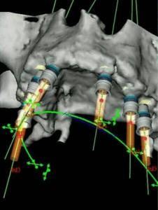 Pianificazione intervento implantologia Bologna