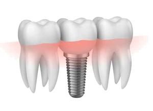 Implantologia a carico immediato Bologna