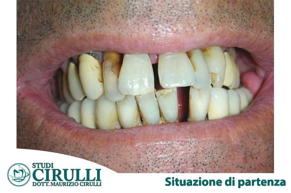 Situazione di partenza: grave parodontopatia degli elementi dentari con mobilità elevata ed ascessi ricorrenti