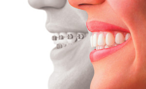 Ortodonzia invisibile: Invisalign