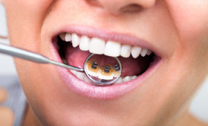 Ortodonzia Bologna - Apparecchio linguale
