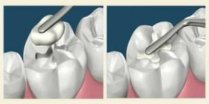 conservazione denti