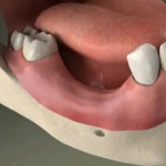 perdita denti