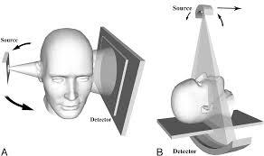 tomografia Tac Cone Beam