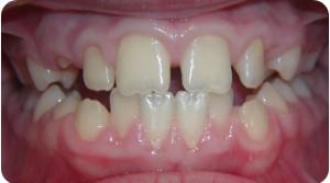 Diastemi e denti inclusi - prima