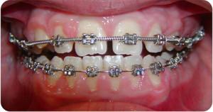 Diastemi e denti inclusi - durante