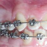 eruzione dente incluso