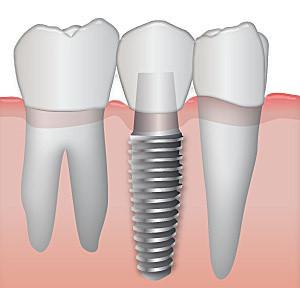 implantologia agenesia dentale