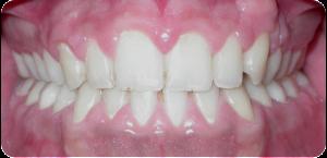Risultato finale: trattamento diastema e malocclusione