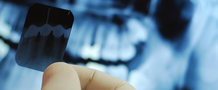 Radiografia denti ortopanoramica
