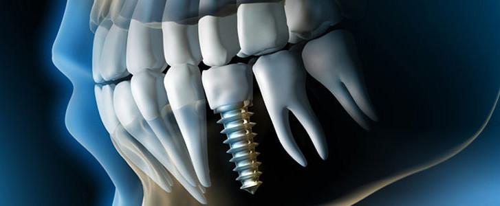 Implantologia-perche-sceglierla