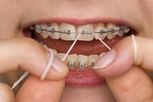 pulizia_apparecchio_denti