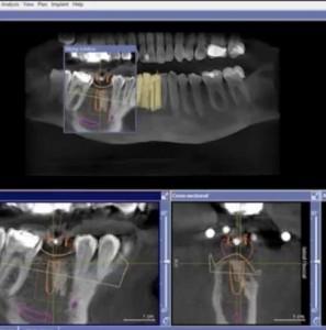 tac cone beam diagnostica per immagini