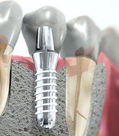chirurgia orale implantologia