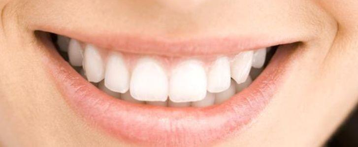 preservare i denti naturali