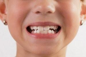 ipoplasia dello smalto nei bambini