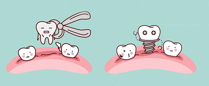 Implantologia post estrattiva