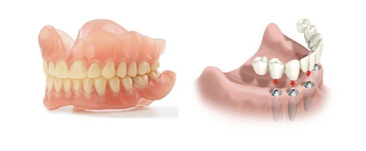 protesi mobili o implantologia