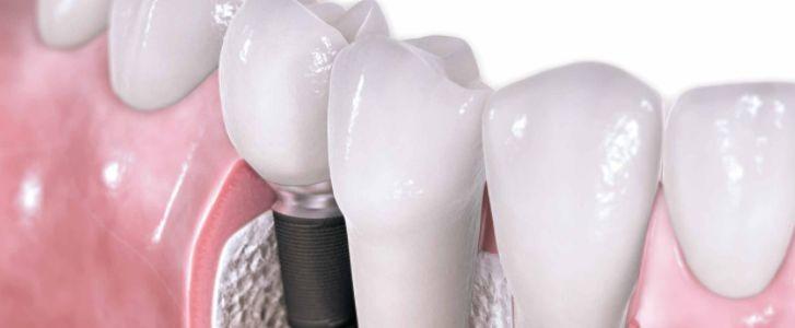 affrontare l'implantologia