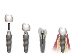 intervento di implantologia personalizzato
