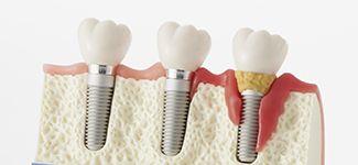 perimplantite infezione impianto dentale
