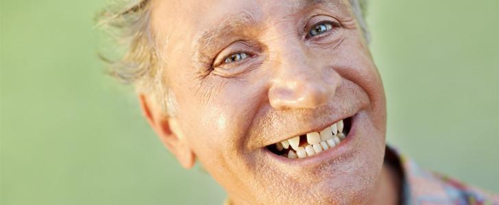 sostituzione denti dentista bologna