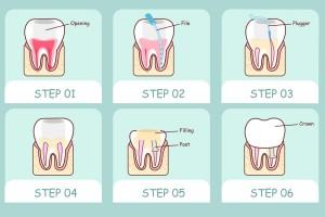 cura canalare devitalizzazione dente