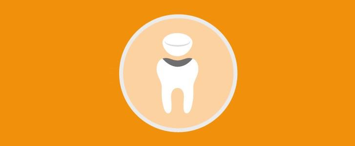 intarsi dentali dentista bologna