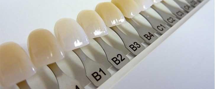 colore dei denti