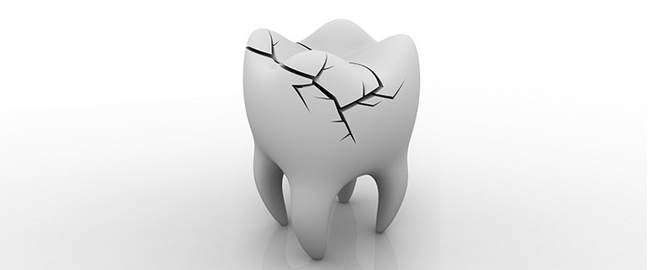 smalto consumato dentista bologna