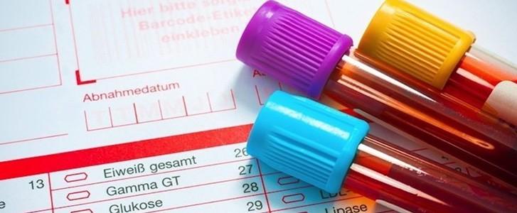 esami del sangue per implantologia
