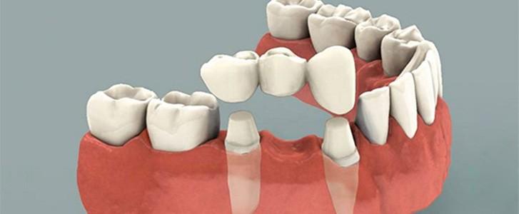 ponte su denti naturali dentista bologna