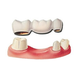 ponte su denti naturali