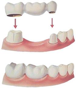 ponte su denti naturali bologna