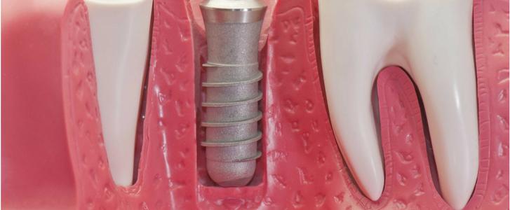 osteointegrazione implantologia a bologna