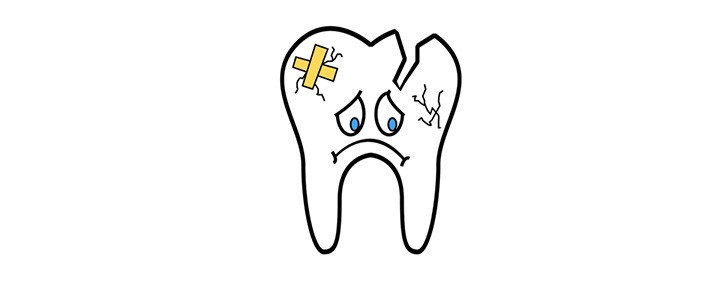 frattura dentale dentista bologna