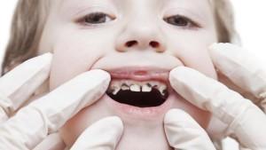 carie ai denti diminuire gli zuccheri