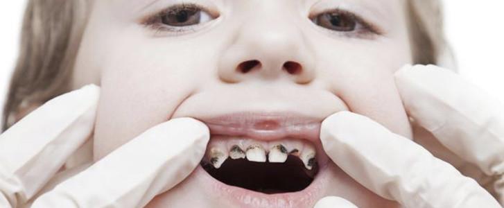 carie ai denti decidui