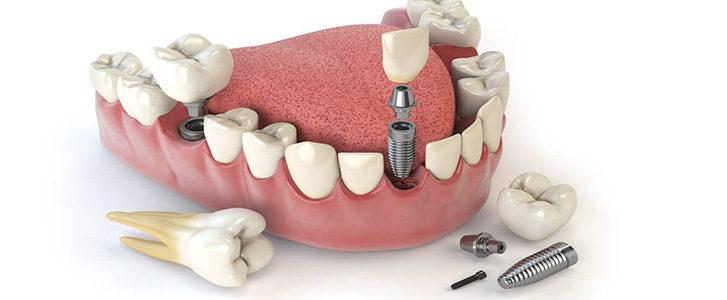 frattura dell'impianto dentale
