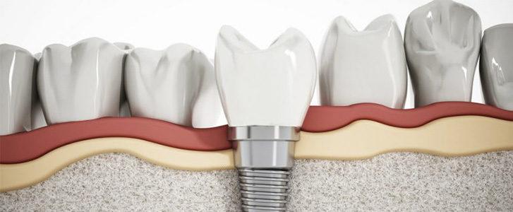 impianto dentale sommerso