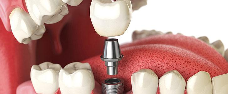 componenti di un impianto dentale
