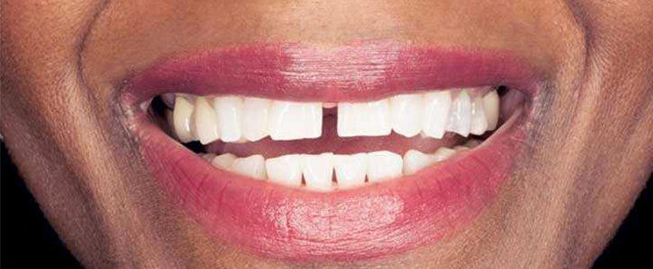 diastema dentista bologna