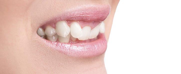 gengive si ritirano dentista bologna