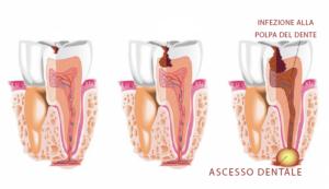 ascesso dentale cura