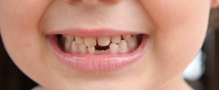 anchilosi dei denti