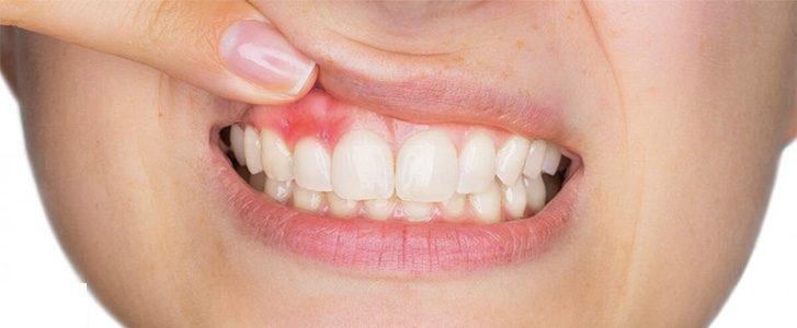 ascesso dentale dentista bologna