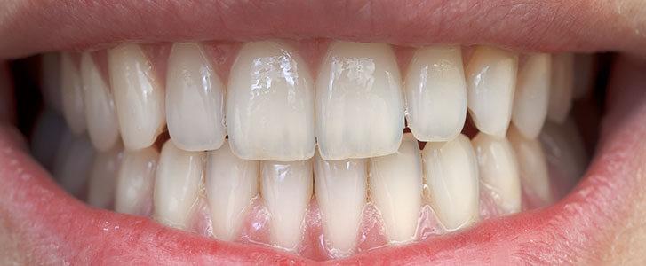 macchie bianche sui denti