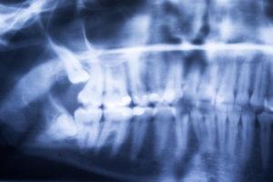 estrazione del terzo molare chirurgia bologna