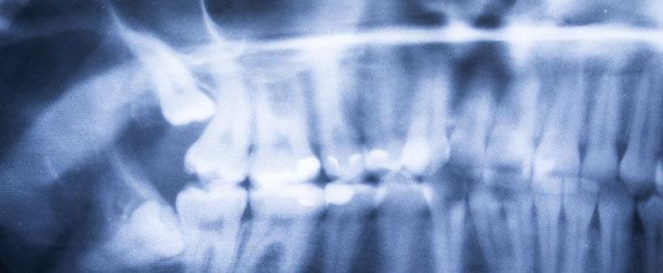 estrazione del terzo molare bologna