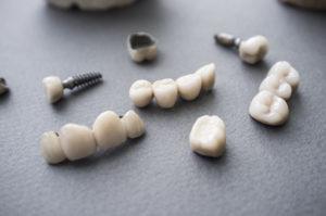 impianti corti implantologia bologna
